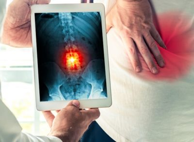Doctor holding a digital tablet with x-ray-of back